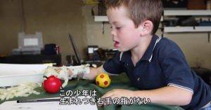 子供の義手を3Dプリンターで作る。家族も子供も助かる技術 こうゆう使い方をしていきたいよね