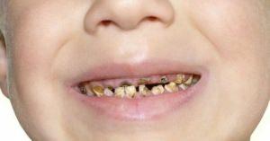 <知るべき実態・・・!> 日本発、世界で300億本売れているスポーツドリンクがアナタの歯をボロボロにする