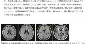 ■脳が委縮し始めてますよ■ 都内に住んでいた30代の女性。 MRI撮ってもらったら委縮していた。 脳が委縮してまで東京に住み続ける理由があるんですか??  彼女は現在京都で生活保護受けながら暮らしてます・・・
