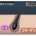 <朗報!朗報!朗報!!> 「薄毛は、コラーゲン減が要因」東京医科歯科大が解明!ではそのコラーゲンを産生させる方法は!?