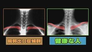 鎖骨がハの字Vの字2画面
