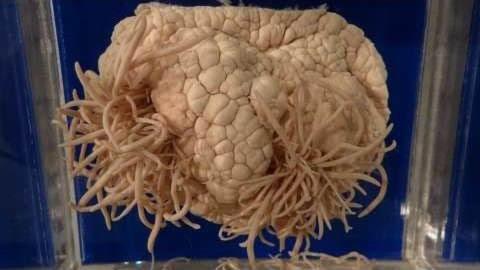 脳を食い破る「有鉤条虫」